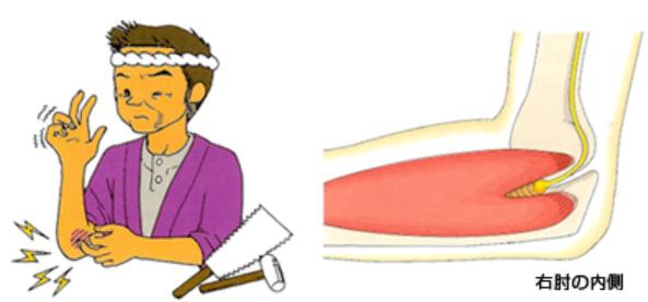 小指側の手、小指と薬指半分がしびれる!肘管症候群(尺骨神経障害)の可能性。