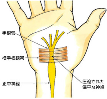 手全体・指先(親指~薬指)がしびれる!手根管症候群の可能性。